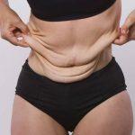 fajas para piel flácida desaparecer el exceso de piel